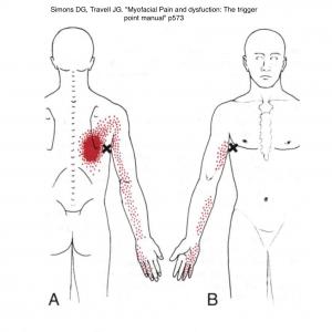Représentation d'une douleur projetée dans le cadre d'un trigger point mds paradis dry needling